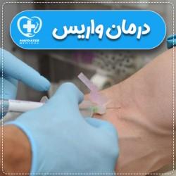 درمان بیماری واریس